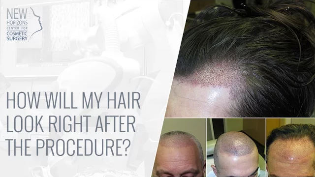 Robotic Hair Transplant Video Dr Turowski